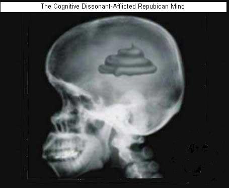 http://www.bartcop.com/shit-brain1.jpg